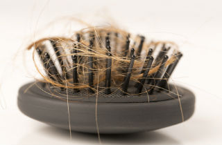 Can hydrocodone cause hair loss?