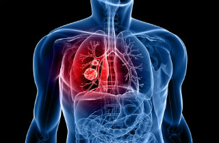 Does weed cause lung cancer?