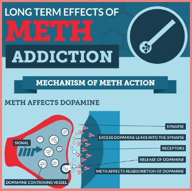 Long term effects of meth addiction (INFOGRAPHIC)